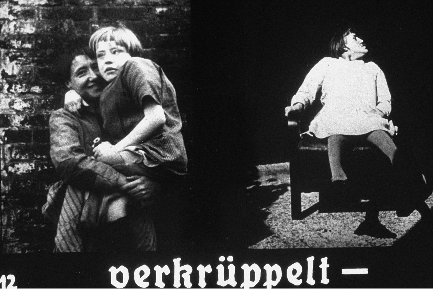 "Propaganda slide featuring two images of physically disabled children.  The caption reads, ""deformed."""