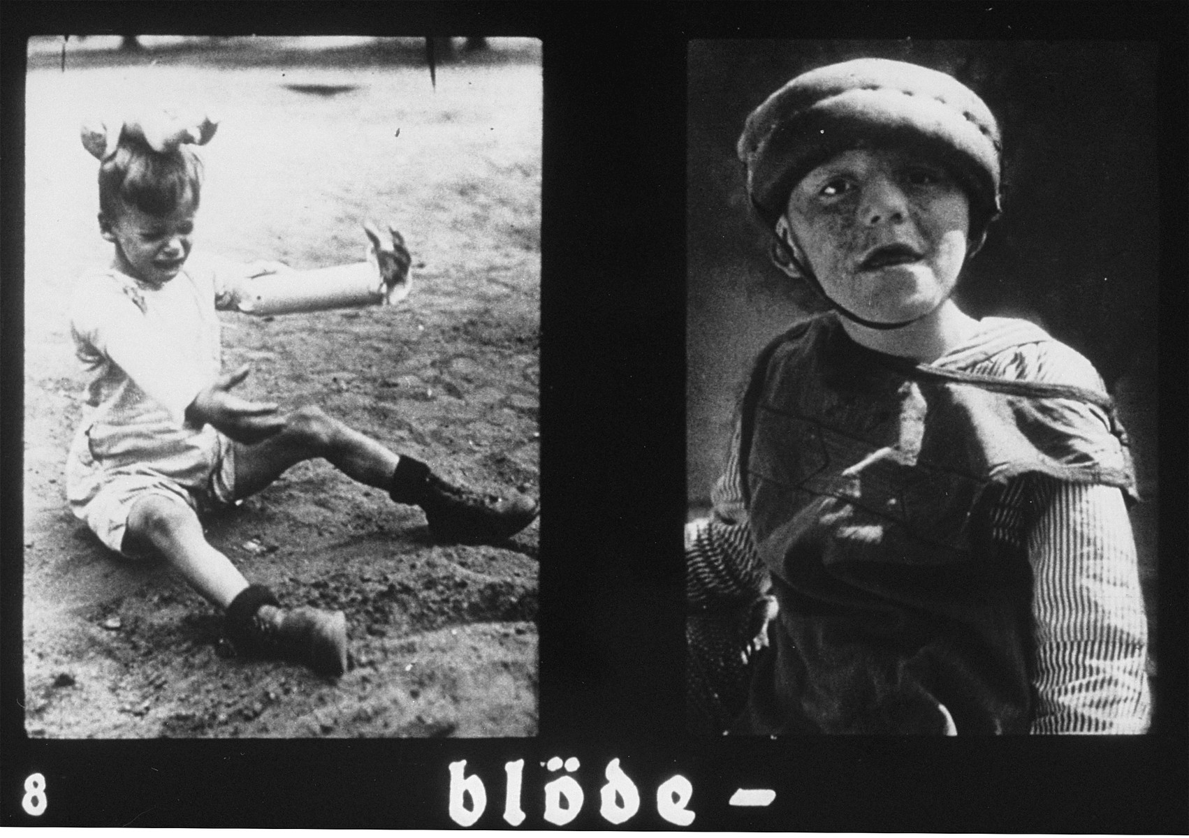 "Propaganda slide featuring two photos of mentally ill patients.  The caption reads, ""Stupid."""