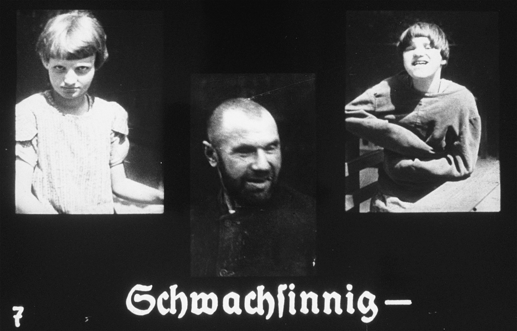 """Propaganda slide featuring three portraits of mentally ill patients.  The caption reads, """"Idiotic."""""""