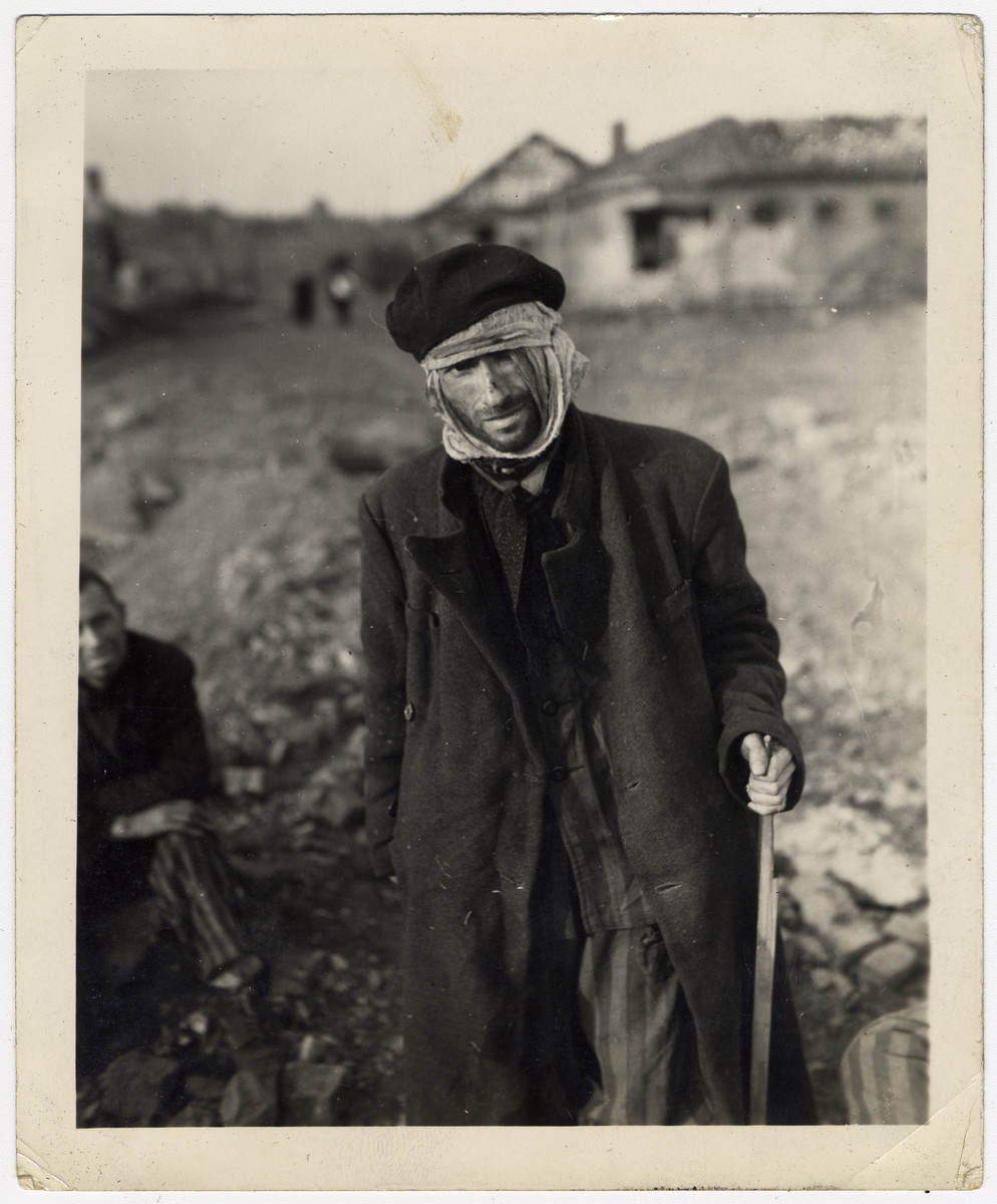 Close-up portrait of an emaciated survivor of the Nordhausen concentration camp.