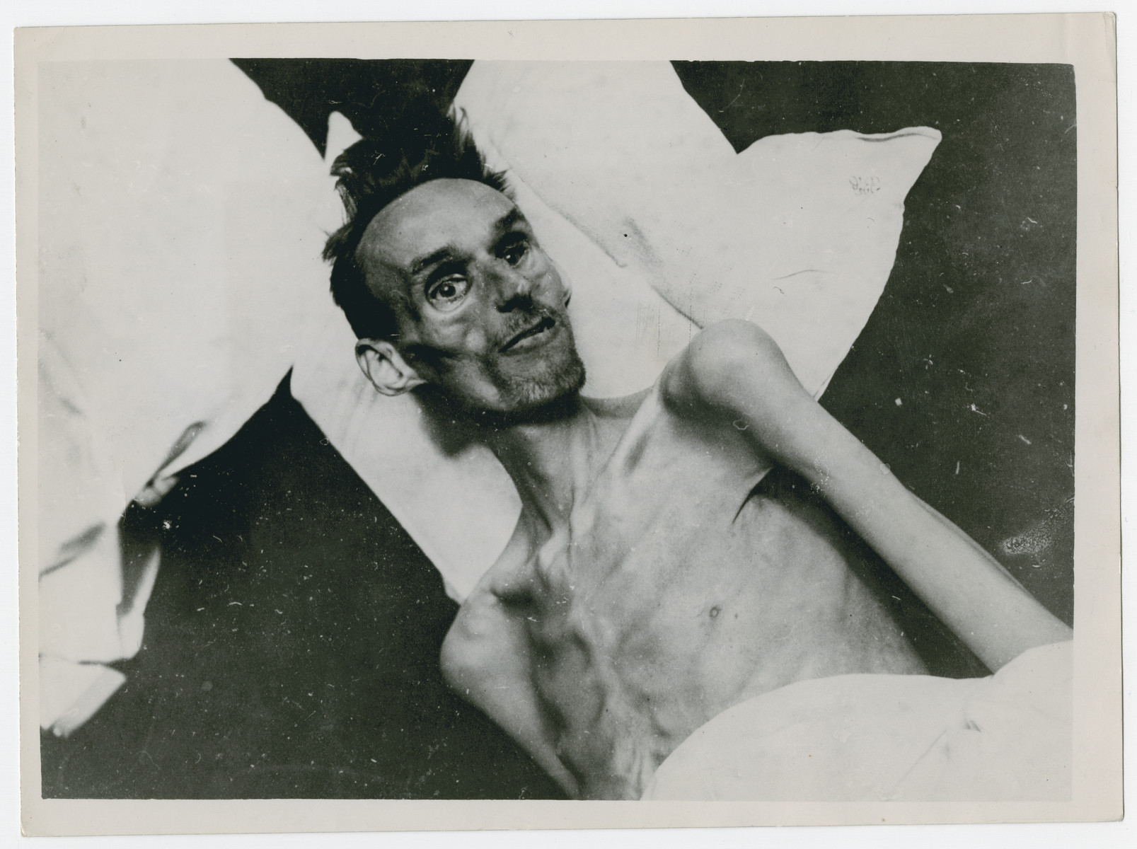 """Close-up portrait of a 37 year old Dutch man who died of starvation in Amsterdam.  Original caption reads:  """"Hundreds die of starvation in Holland.  This man, 37, was one of the 1,200 persons who died of starvation in Amsterdam, Holland, when the Germans destroyed the country's dikes and flooded Dutch farms with seawater.  Before the Allies liberated the Low Countries, they sent more than 2,150 B-17 Flying Fortresses which dropped 2,500 tons of food to the starving population.  When the Germans were pushed back, land vehicles and ships rushed food to Holland""""."""