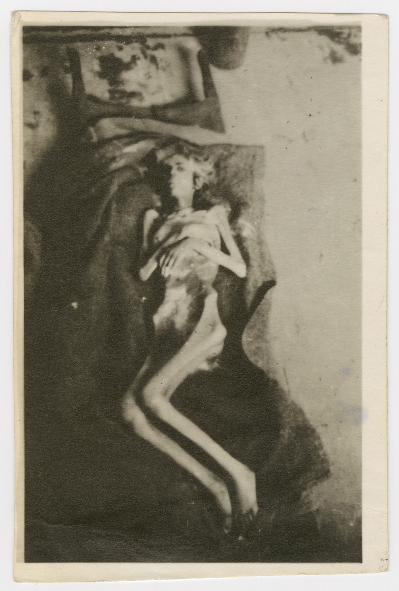 Close-up of either a corpse or an extremely malnourished, starved survivor in the Bergen-Belsen concentration camp after liberation.