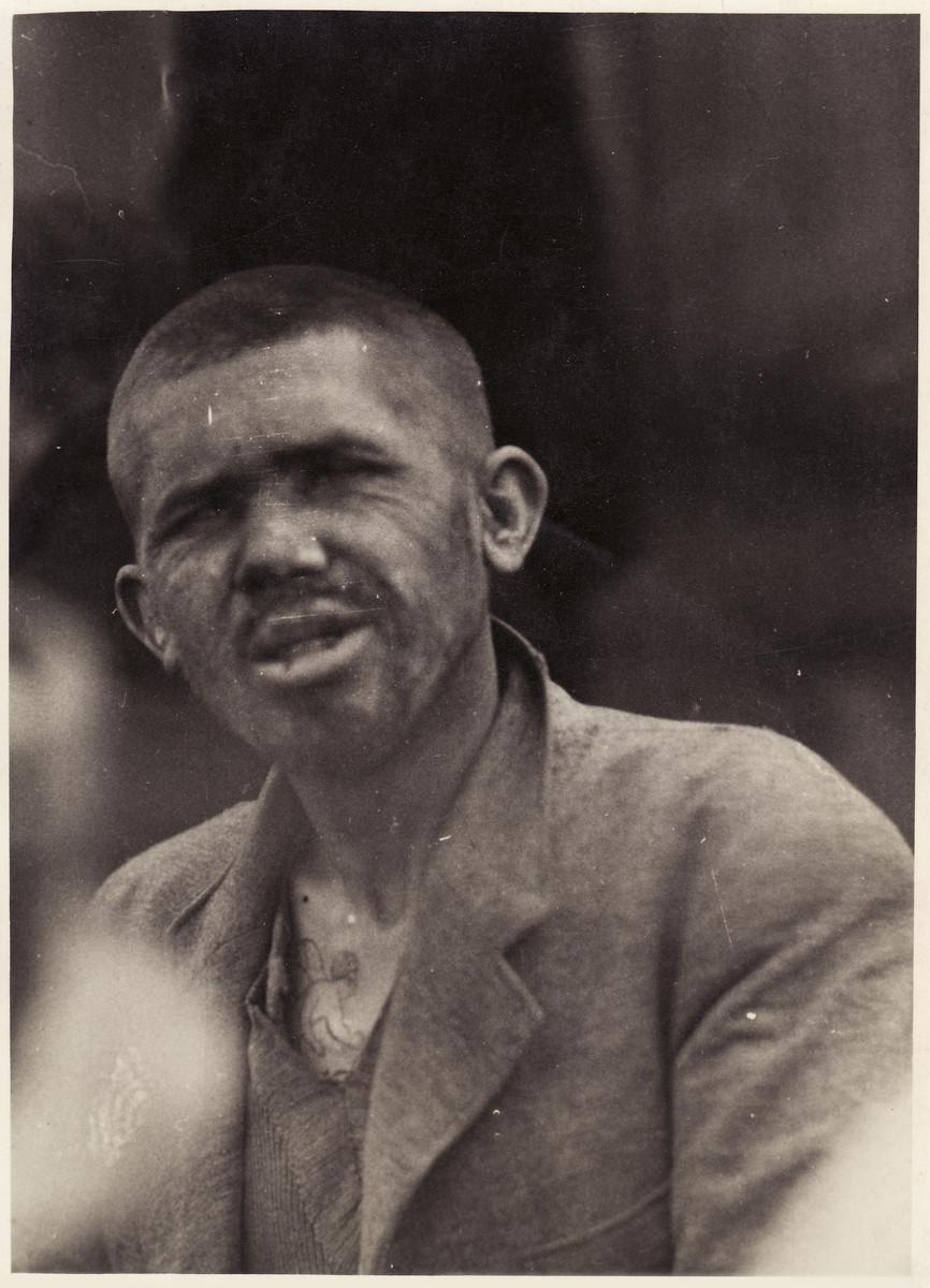 A survivor at the Bergen-Belsen concentration camp.