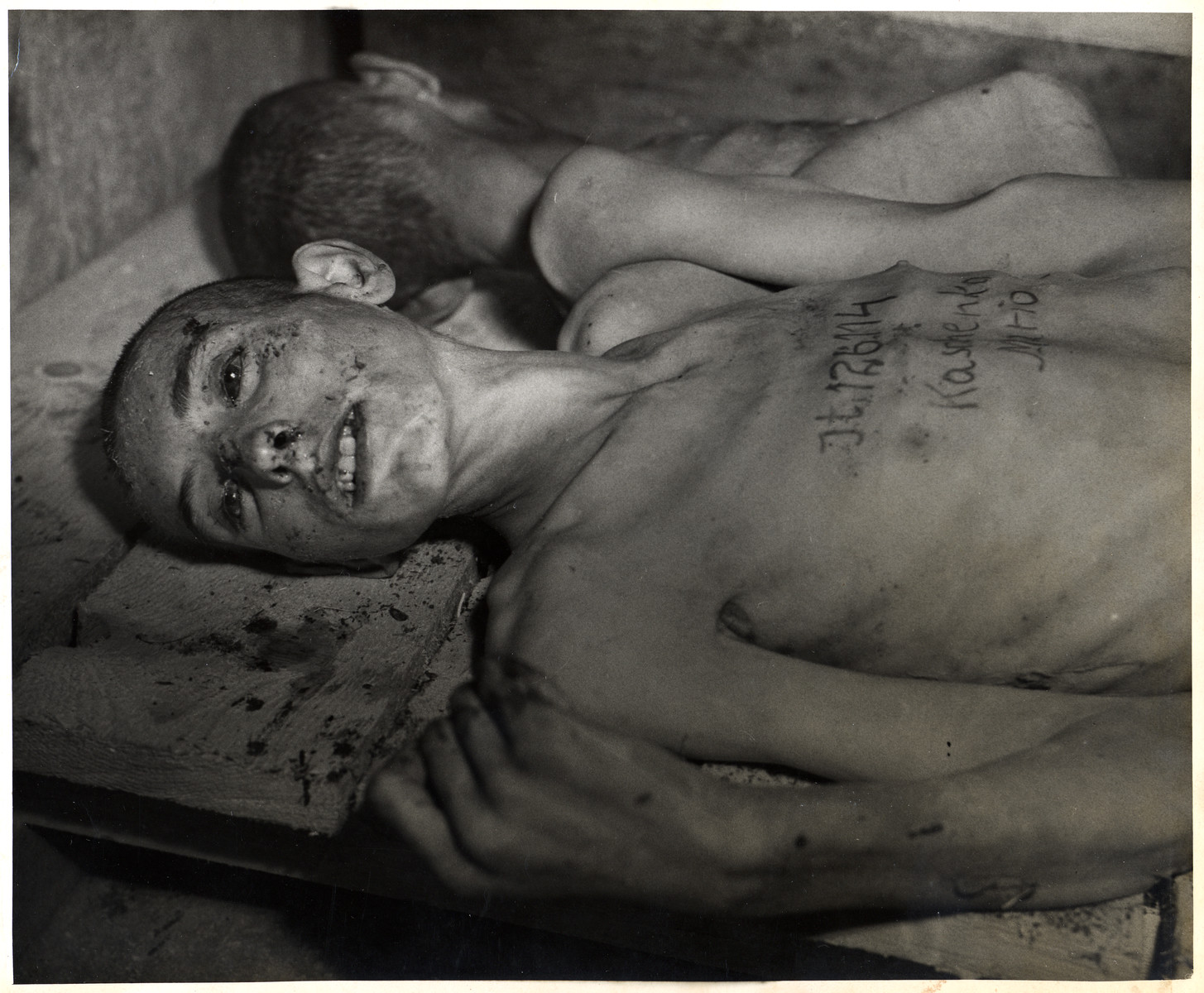 Close-up portrait of a bloodied, emaciated man in an unidentified concentration camp with his name and number written on his chest.