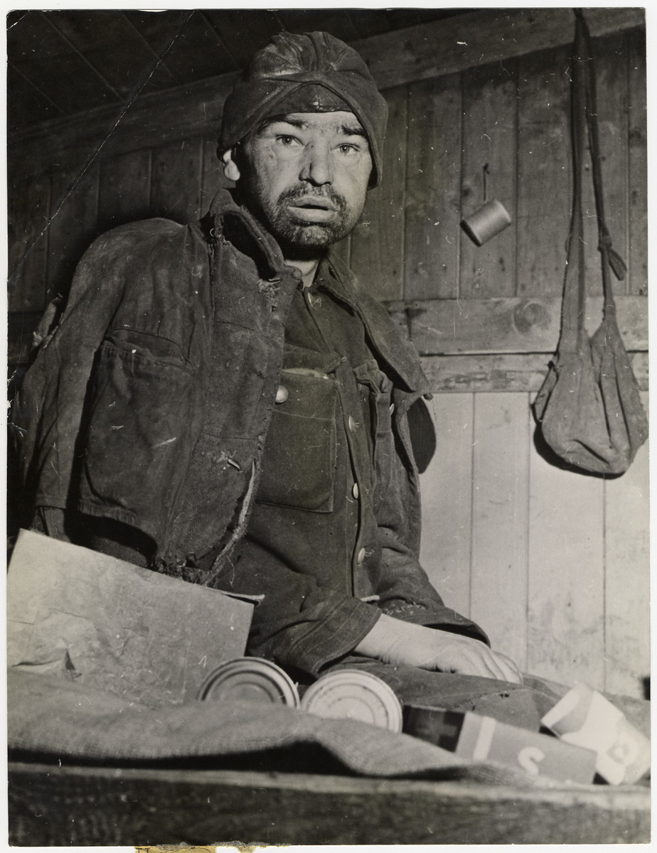 "Close-up portrait of a liberated Soviet prisoner being treated for tuberculosis.  The original caption reads: ""This is a tuberculosis patient in the filthy ""hospital"" of the prisoner-of-war camp in Homer, Germany. This photograph was made April 28, 1945, after Ninth U.S. Army troops liberated Homer's 22,000 Russian war prisoners, more than 9,000 were hospital cases suffering from tuberculosis, disentery, malnutrition and typhus. Homer is located about 15 miles southeast of Dortmund."""