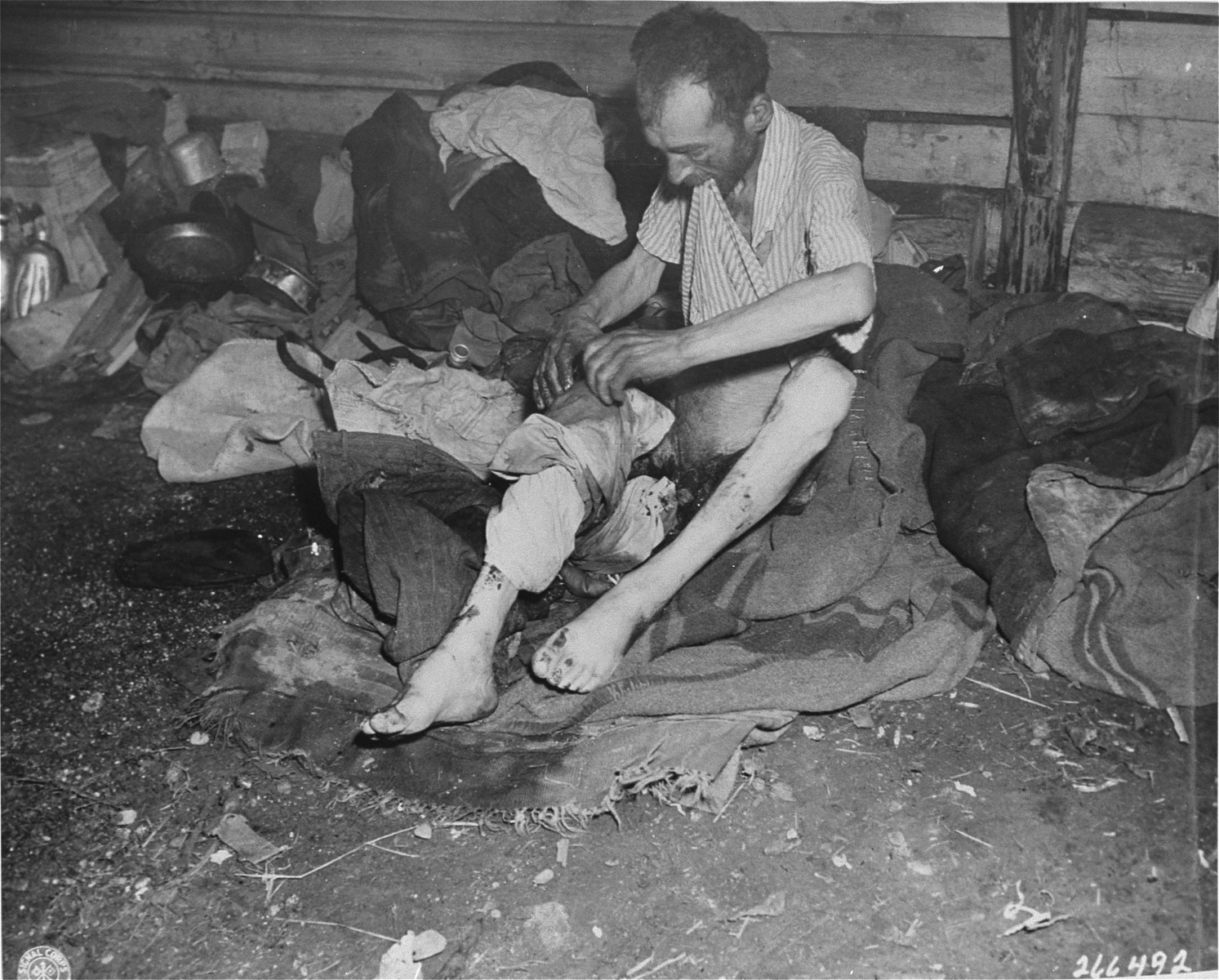 A survivor examines his wounded leg in the Gunskirchen concentration camp.