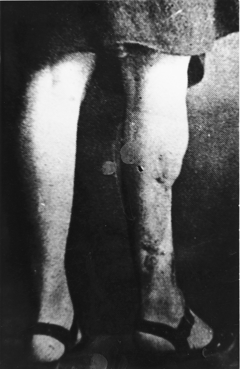 A war crimes investigation photo of the disfigured leg of Maria Kusmierczuk, a Ravensbrueck inmate, who was subjected to medical experiments with sulphonamide drugs in 1942.  The photograph was taken in Poland by investigators prior to the opening of the trial.  The experiments were conducted by Dr. Fritz Fischer, Prof. Karl Gebhardt, Dr. Stumpfegger and Ravensbrueck camp doctor, Herta Oberheuser.  This photograph was entered as evidence for the prosecution at the Medical Case trial in Nuremberg.  The victims gathered in Medical Academy in Gdansk, Poland in the summer of 1946. Dr. M. Michejda Chief of Chirurgy Dept) described the injuries and  had photographs taken of the mutilated legs were taken.   The disfiguring scars on the woman's right leg resulted from incisions made by medical personnel that were purposely infected with bacteria, dirt and slivers of glass, in order to simulate the combat wounds of German soldiers fighting in the war.  The inflamed area was then treated with sulphonamide drugs.  Many of the prisoners subjected to these treatments died from their wounds.