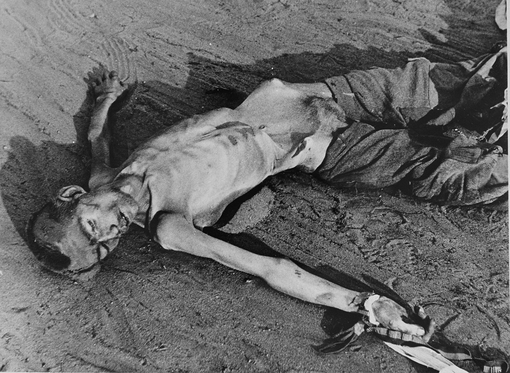A corpse in Bergen-Belsen concentration camp.