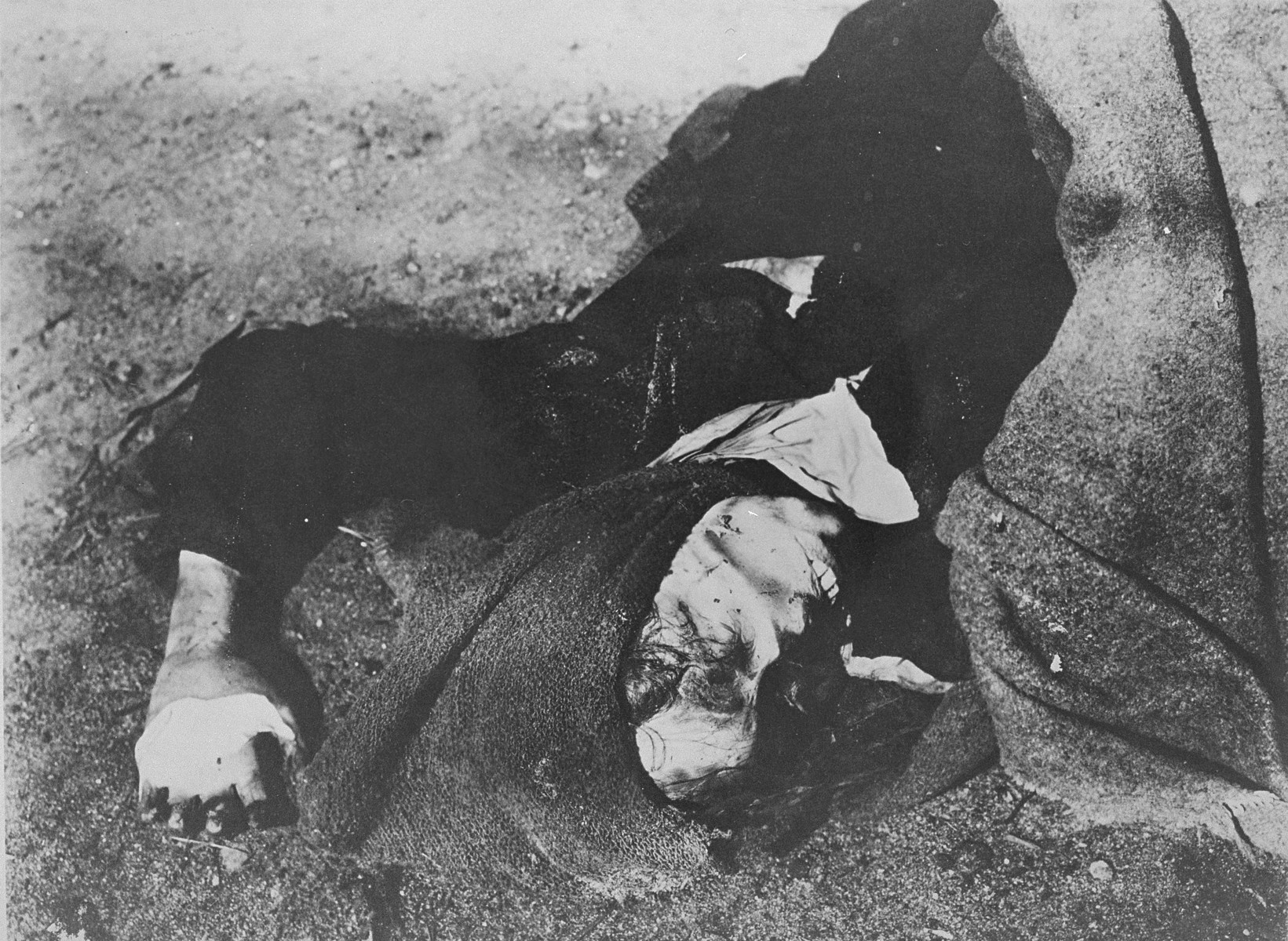 A decomposing corpse in Bergen-Belsen.