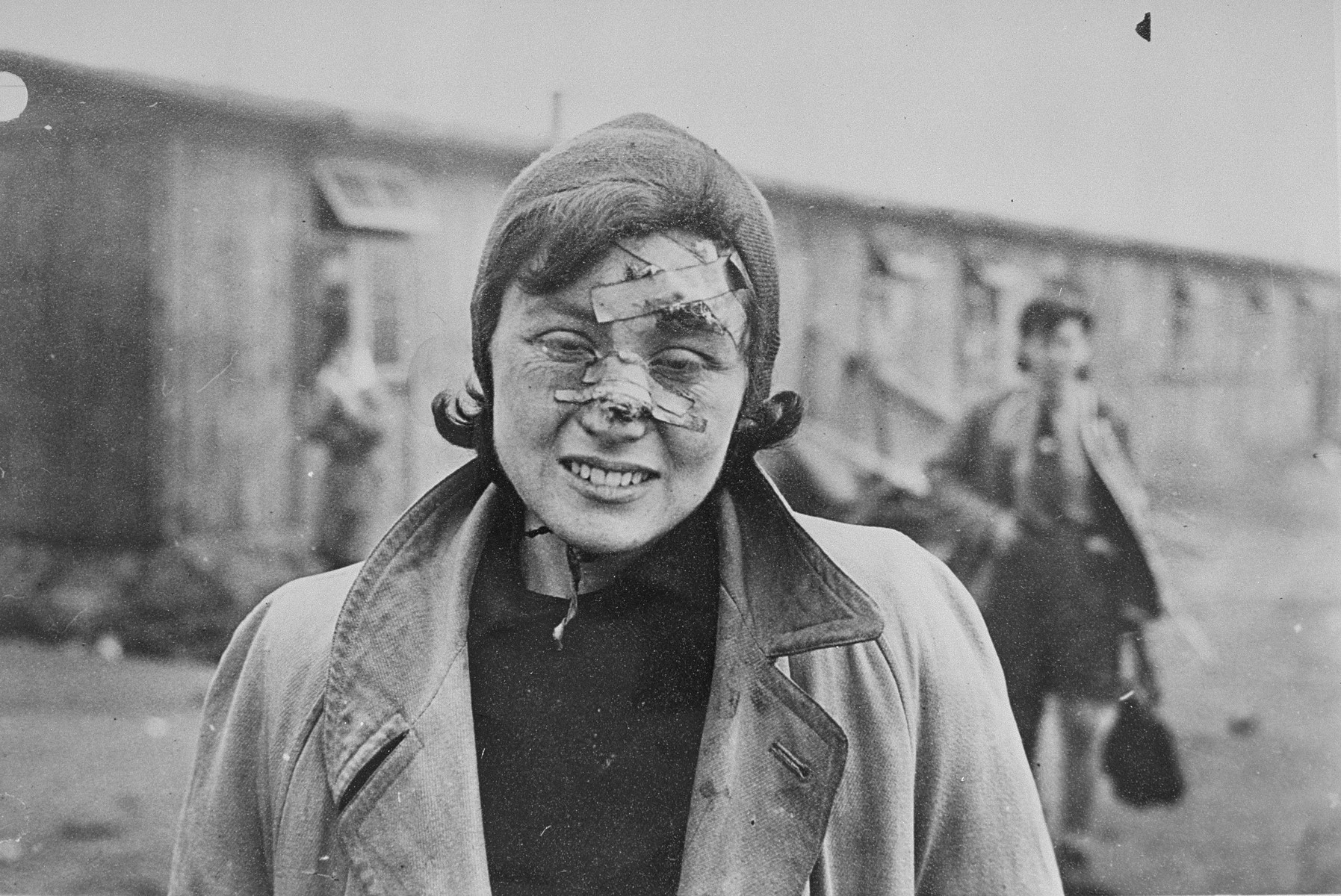 Her wounds badly bandaged, this survivor smiles weakly for the photographer.