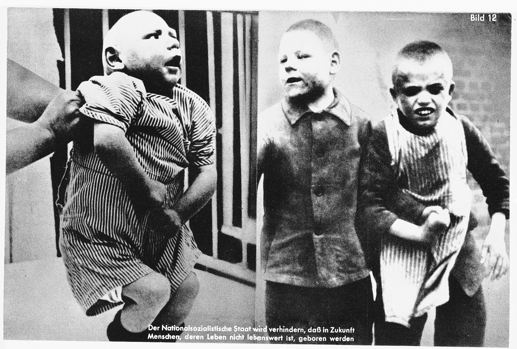 "Nazi propaganda composite photograph showing mentally disabled children.  The original caption reads: ""The National Socialist State in the future will prevent people whose lives are not worth living from being born."""