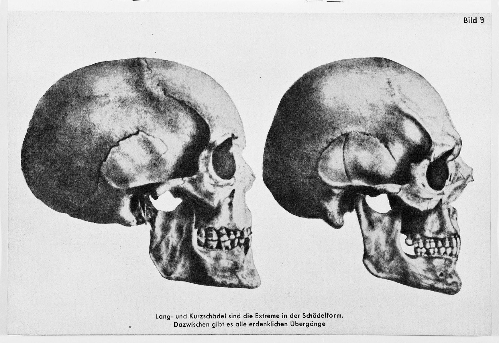 Racial portraits of different skulls.