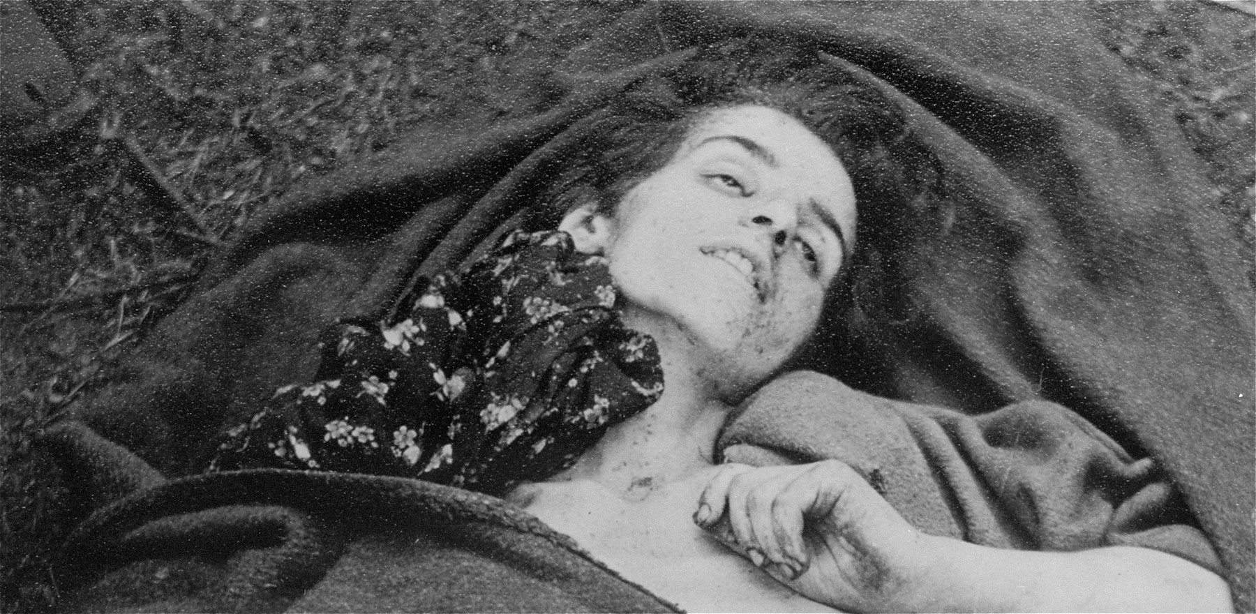The corpse of a woman who perished in Bergen-Belsen.