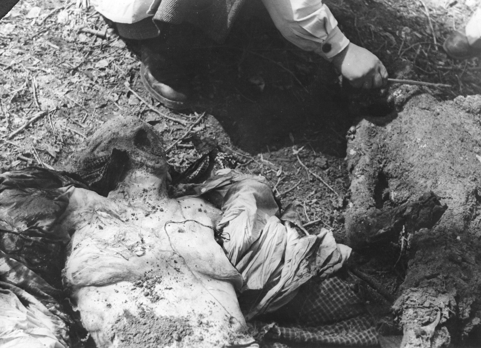 The corpse of a Jew exhumed from a mass grave.  The victims were presumably killed in the Maros Street or Varosmajor Street hospital massacres.