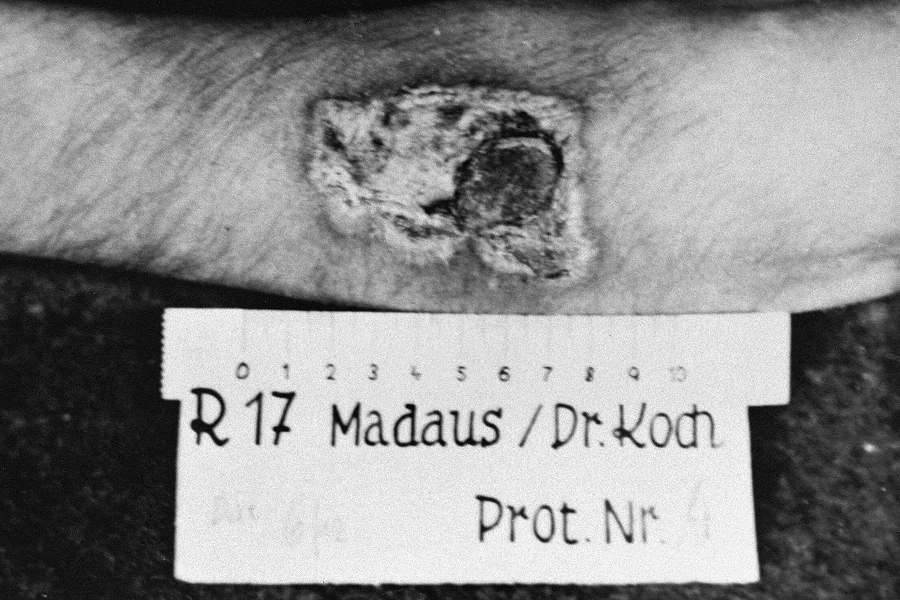 A photograph of the results of a medical experiment dealing with phosphorous that was carried out by doctors at Ravensbrueck.    In the experiment, a mixture of phosphorus and rubber was applied to the skin and ignited.  After twenty seconds, the fire was extinguished with water and then wiped with R17.  After three days, the burn was treated with Echinacin in liquid form.  After two weeks the wound had healed.  This photograph, taken by a camp physician, was entered as evidence during the Doctors Trial at Nuremberg.