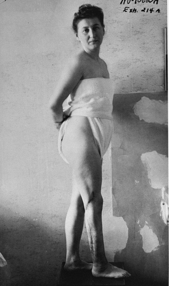 A war crimes investigation photo of Jadwiga Dzido, a member of the Polish underground, who was deported to Ravensbrueck in March 1941.    The experiments were conducted by Dr. Fritz Fischer, Prof. Karl Gebhardt, Dr. Stumpfegger and Ravensbrueck camp doctor, Herta Oberheuser.  This photograph was entered as evidence for the prosecution at the Medical Trial in Nuremberg.  The disfiguring scars on the woman's right leg resulted from incisions made by medical personnel that were purposely infected with bacteria, dirt and slivers of glass, in order to simulate the combat wounds of German soldiers fighting in the war.  The inflamed area was then treated with sulphonamide drugs.  Many of the prisoners subjected to these treatments died from their wounds.