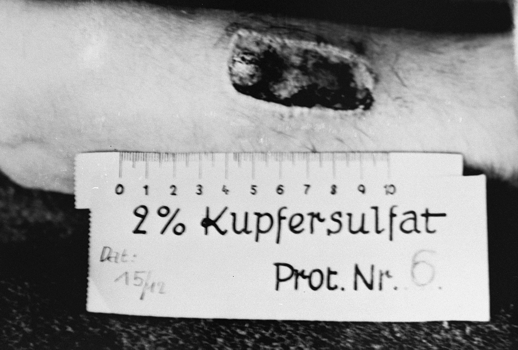 A photograph of the results of a medical experiment dealing with phosphorous, that was carried out by doctors at Ravensbrueck.    In the experiment, a mixture of phosphorus and rubber was applied to the skin and ignited.  After twenty seconds, the fire was extinguished with water and then wiped with R17.  After three days, the burn was treated with Echinacin in liquid form.  After two weeks the wound had healed.  This photograph, taken by a camp physician, was entered as evidence during the Doctors Trial at Nuremberg.