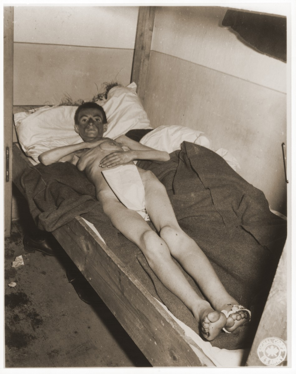 An emaciated female Jewish survivor of a death march lies in an American military field hospital in Volary, Czechoslovakia.  Pictured is twenty-six year old Elizabeth Klein.