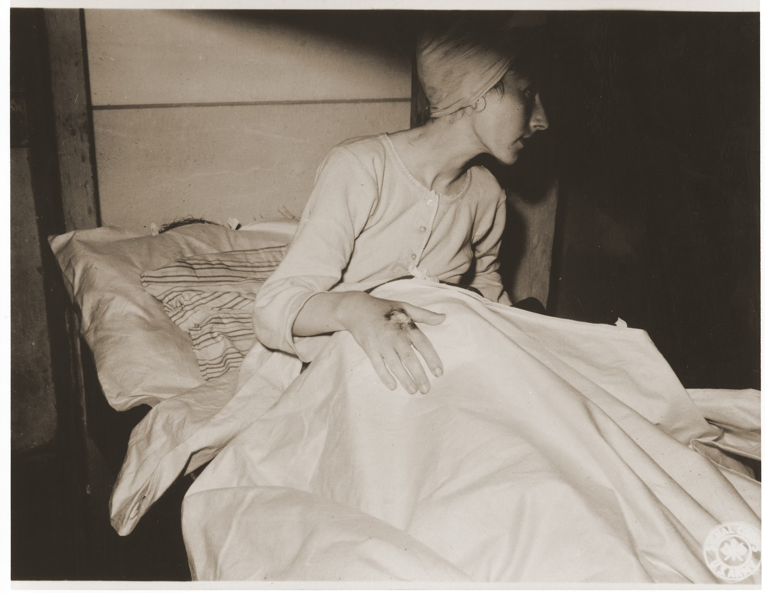 An emaciated female Jewish survivor of a death march sits up in bed at an American military field hospital in Volary, Czechoslovakia.  Pictured is Sabina (Sheva) Szeps, who eventually recovered and immigrated to Palestine.