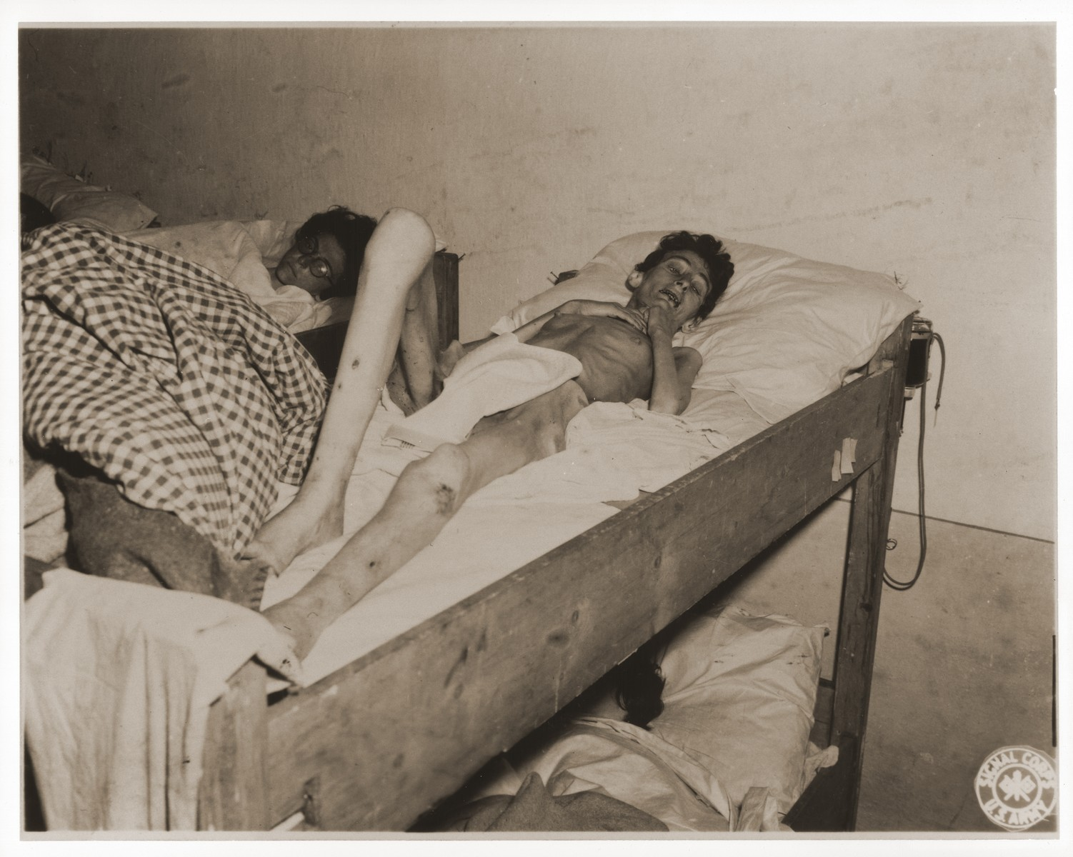 An emaciated female Jewish survivor of a death march lies in bed at an American military field hospital in Volary, Czechoslovakia.  Pictured is thirty-two-year-old Lilly Rosenberg.