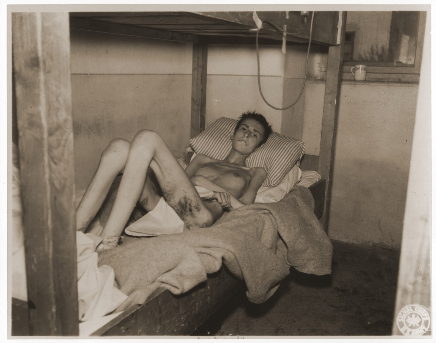 An emaciated female Jewish survivor of a death march lies in bed at an American military field hospital in Volary, Czechoslovakia.  Pictured is eighteen-year-old Liesl Steppe.