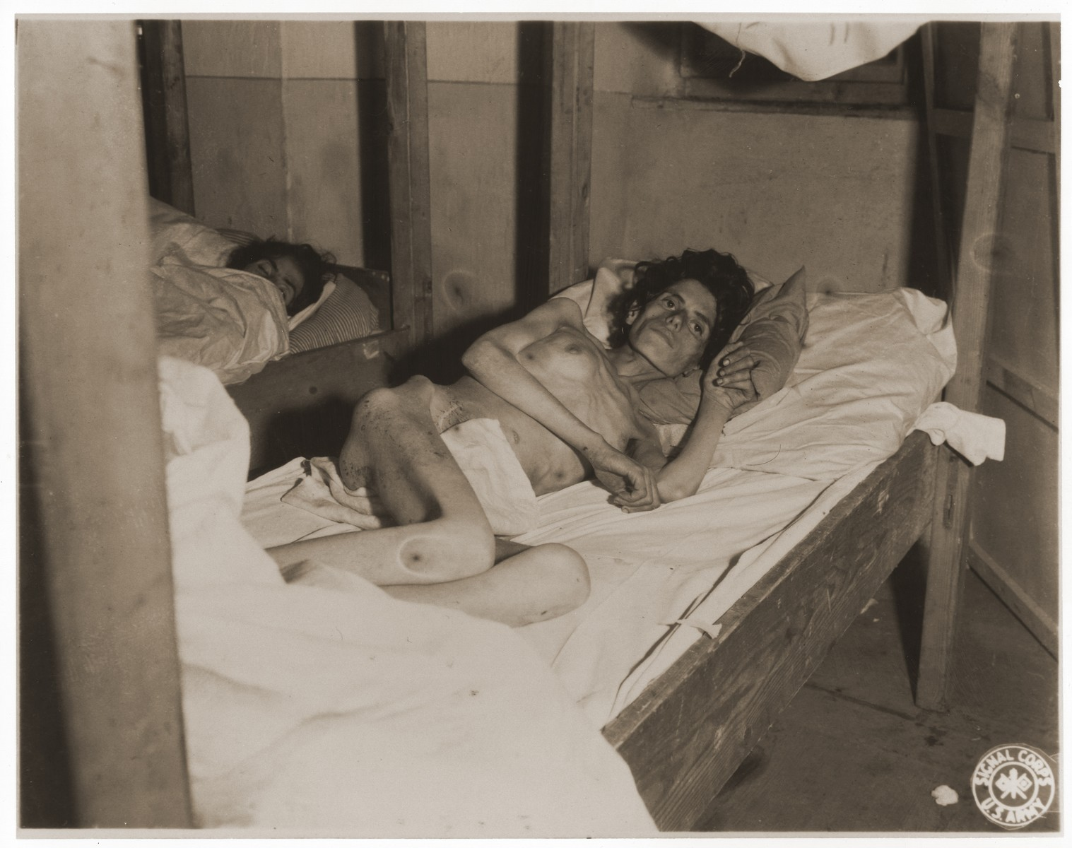 An emaciated female Jewish survivor of a death march lies in an American military field hospital in Volary, Czechoslovakia.  Pictured is twenty-two year old Bina Hauptman.