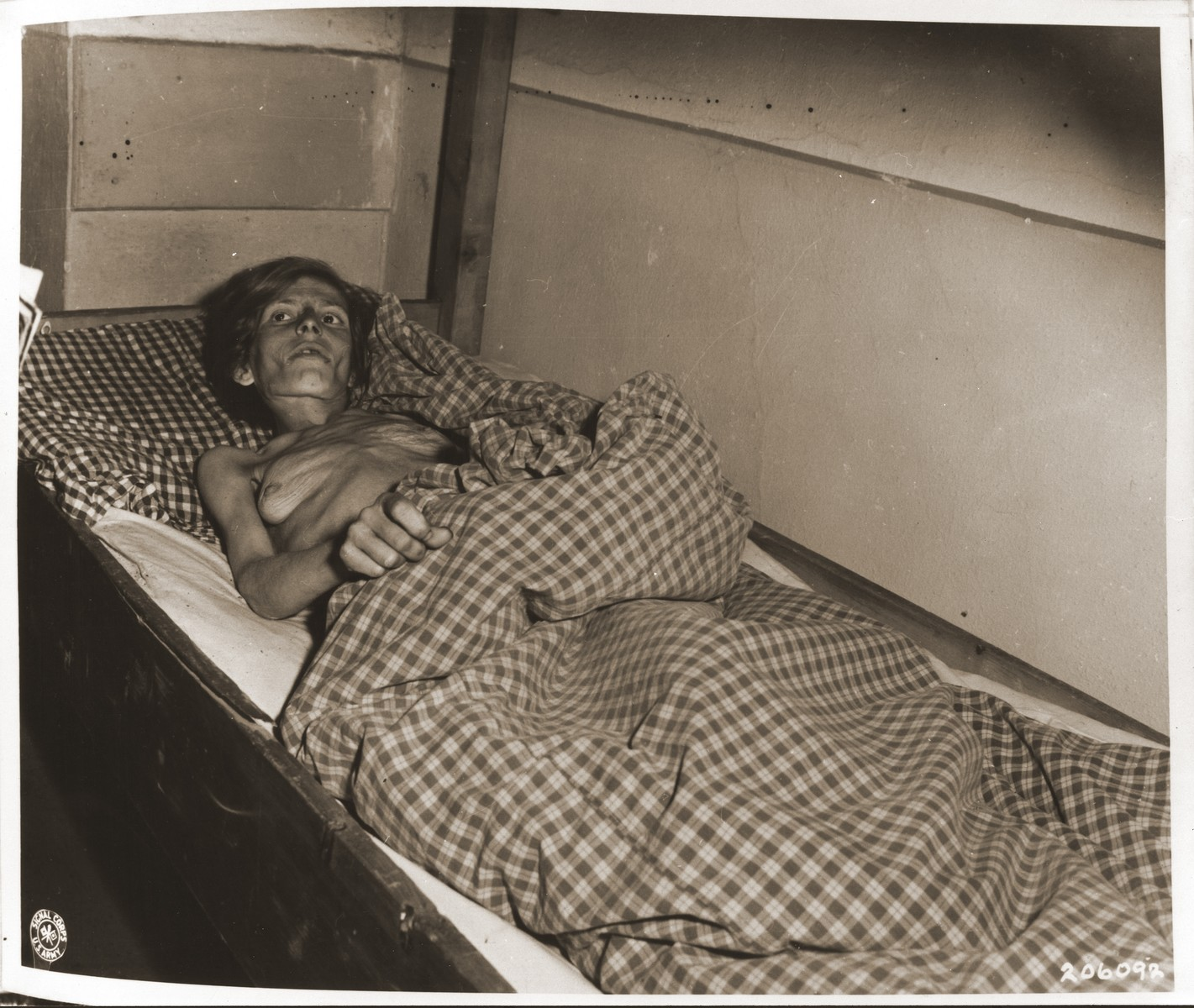 An emaciated female Jewish survivor of a death march from the Gruenberg labor camp to Volary, lies in an American military field hospital in Volary, Czechoslovakia.