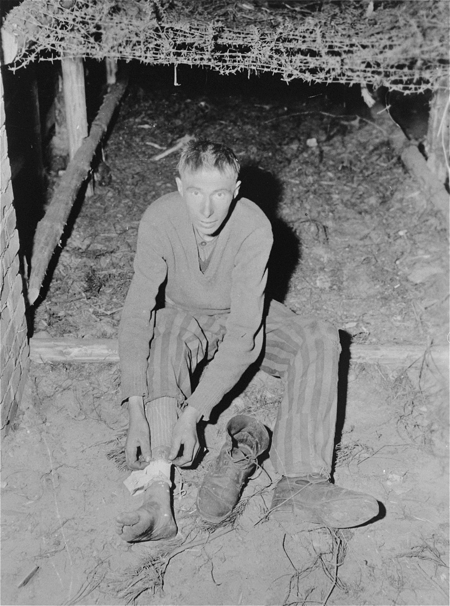 A survivor in Woebbelin shows the photographer where SS guards beat him about the legs with a lead-filled leather whip.