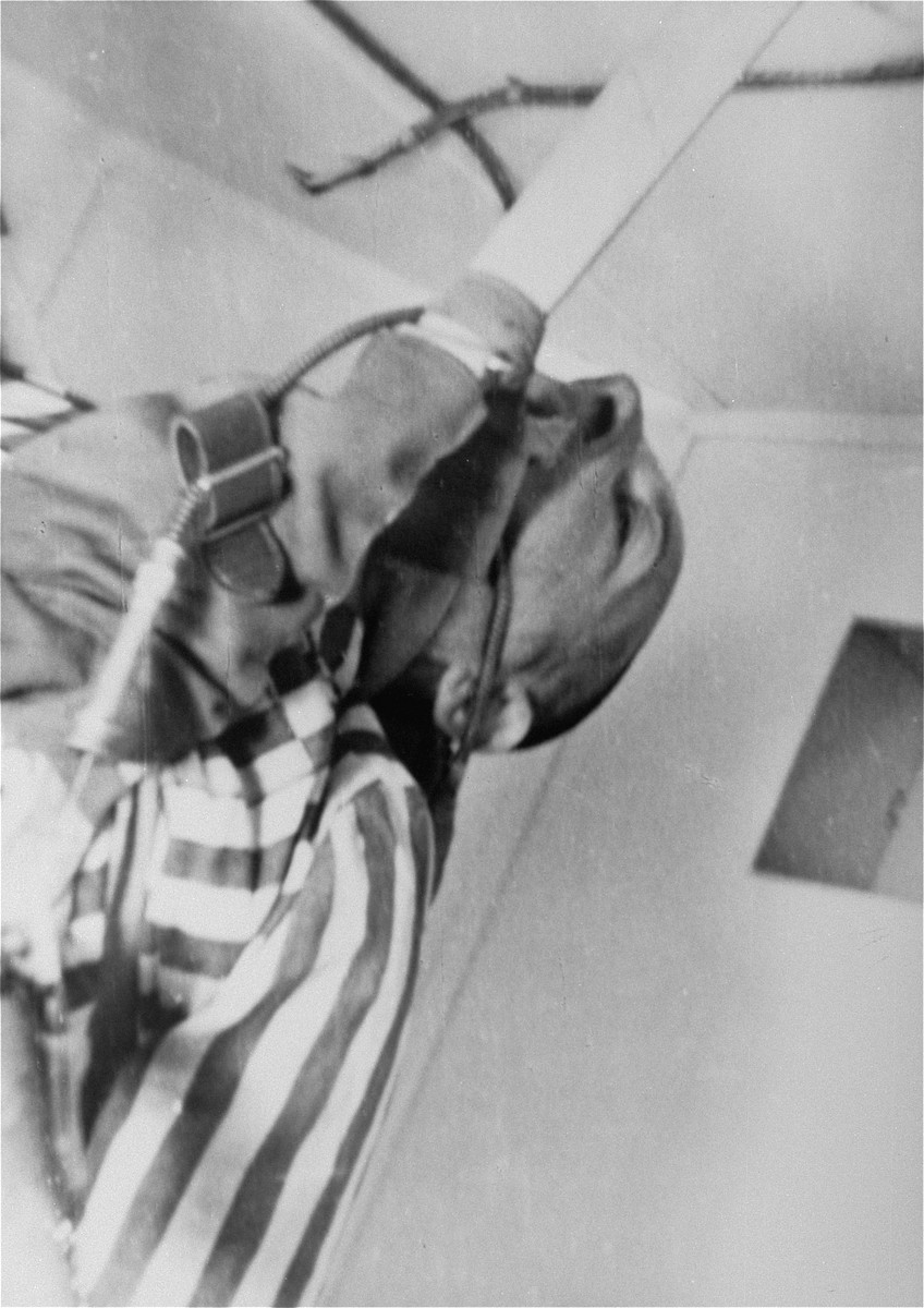 A prisoner who has been subjected to low pressure experimentation.  For the benefit of the Luftwaffe, air pressures were created comparable to those found at 15,000 meters in altitude, to determine how high German pilots could fly and survive.