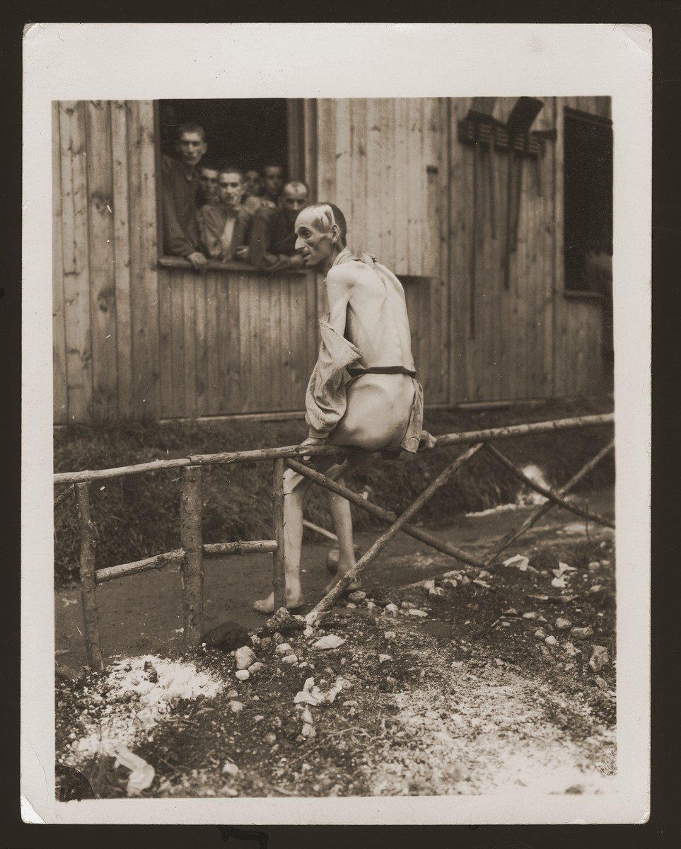 A survivor sits on a railing with his back to the camera outside hospital barracks no. 2 (for Jews) at the Ebensee concentration camp.    The survivor asked US Army Signal Corps photographer Arnold Samuelson to take a picture of his back in order to show his emaciated condition.