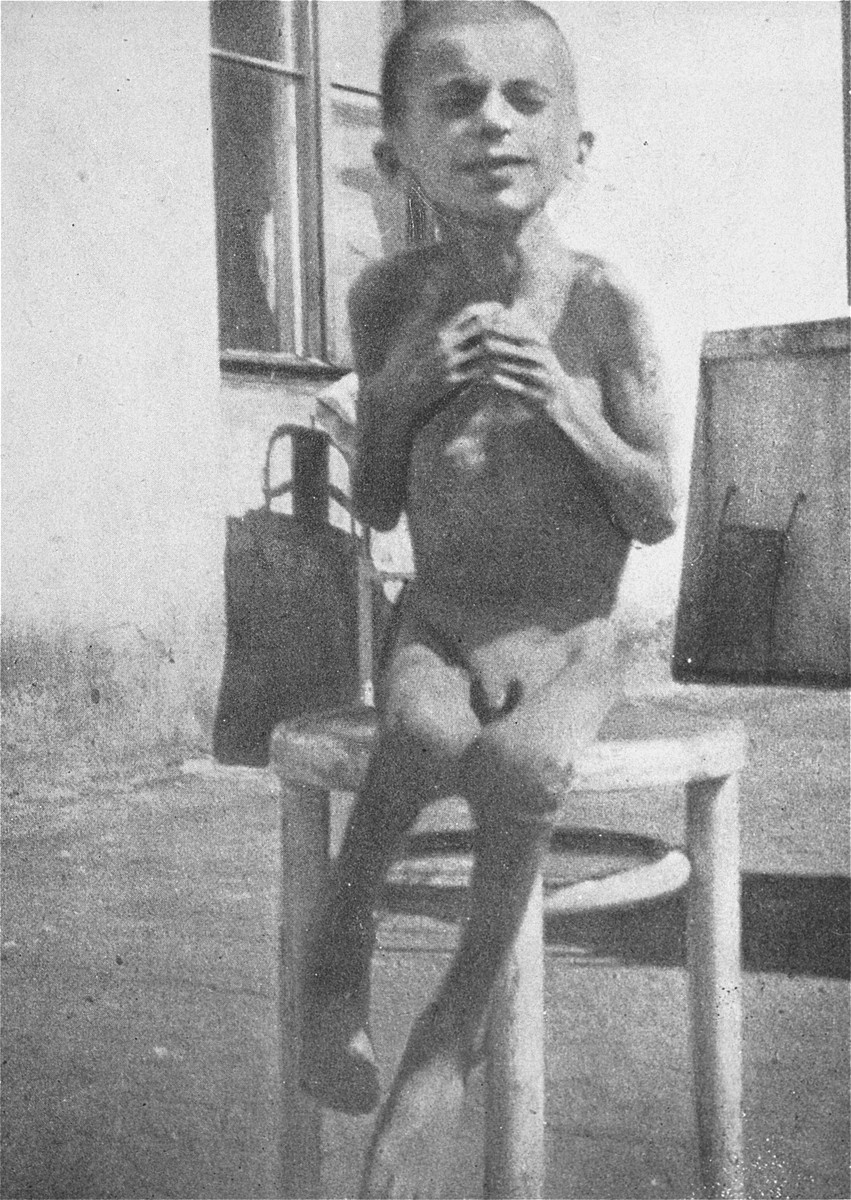 A starving child poses on a stool in a hospital in the Warsaw ghetto.