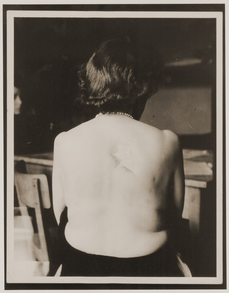 "A female survivor from Vienna bares her back to the camera, showing where the Germans had burned a Star of David into her skin . The Yiddish caption reads: ""The Nazis cruelly burned a Star of David into the back of this woman from Vienna, Austria, after she was caught not wearing the mandatory Star of David.  The woman now lives in the United States""."