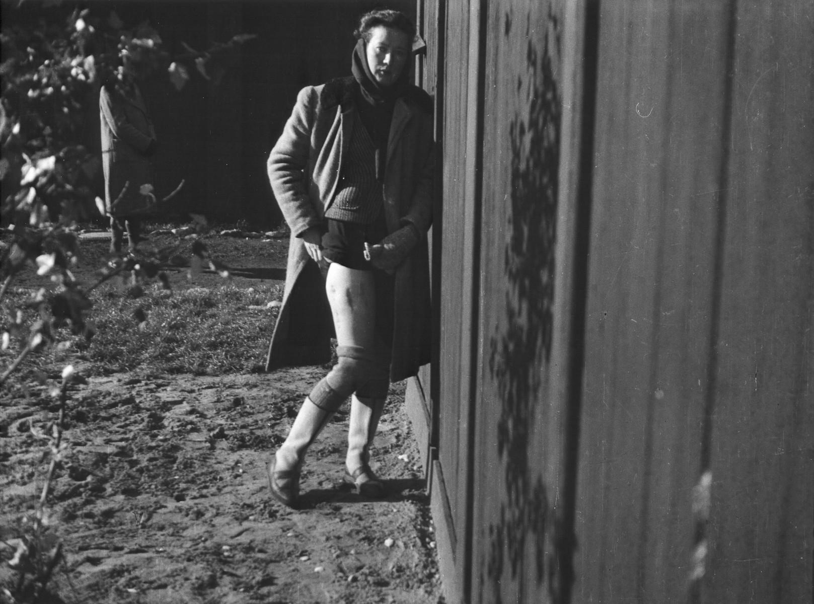 Clandestine photograph of a Polish political prisoner and medical experimentation victim in the Ravensbrueck concentration camp.  Pictured is Bogumila Babinska (Jasiuk).