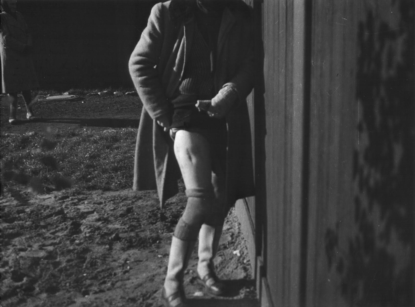 Clandestine photograph of the disfigured leg of Polish political prisoner, Bogumila Babinska (Jasiuk), in the Ravensbrueck concentration camp.