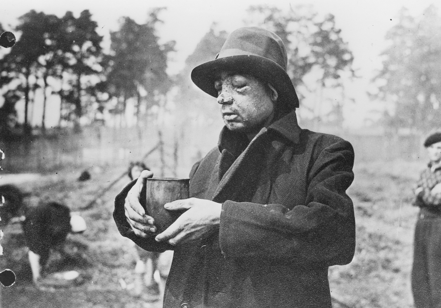 "Clearly beaten before liberation, this survivor in Bergen-Belsen concentration camp drinks what he can from a rusty tin cup.  The original caption reads ""Blinded by continuous beatings and long suffering under the Nazis,  a man drinks water from a rusty tin."""