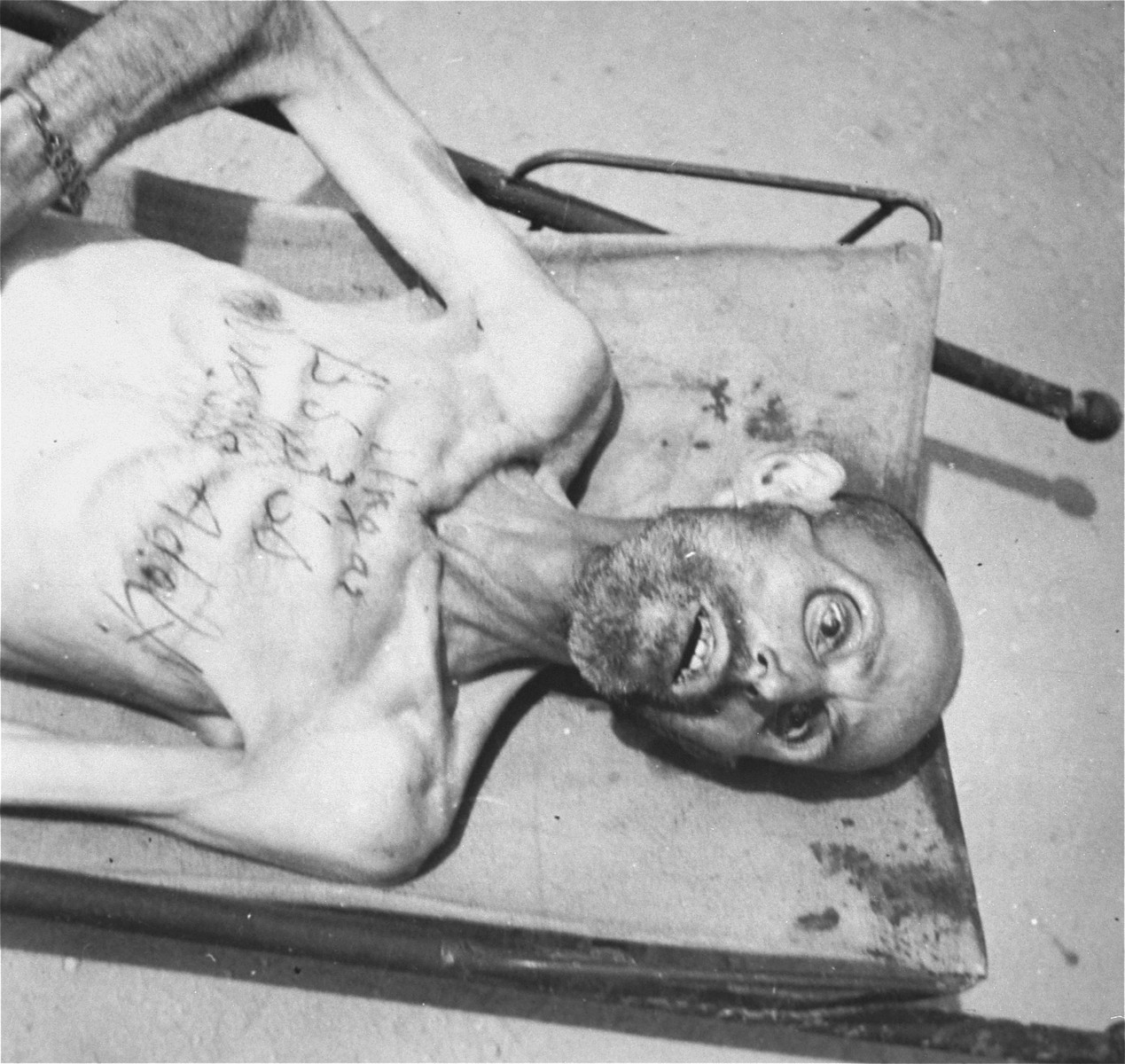 A dead Jewish prisoner from Hungary, whose prisoner number and name were written on his chest in ink, lies on a stretcher.