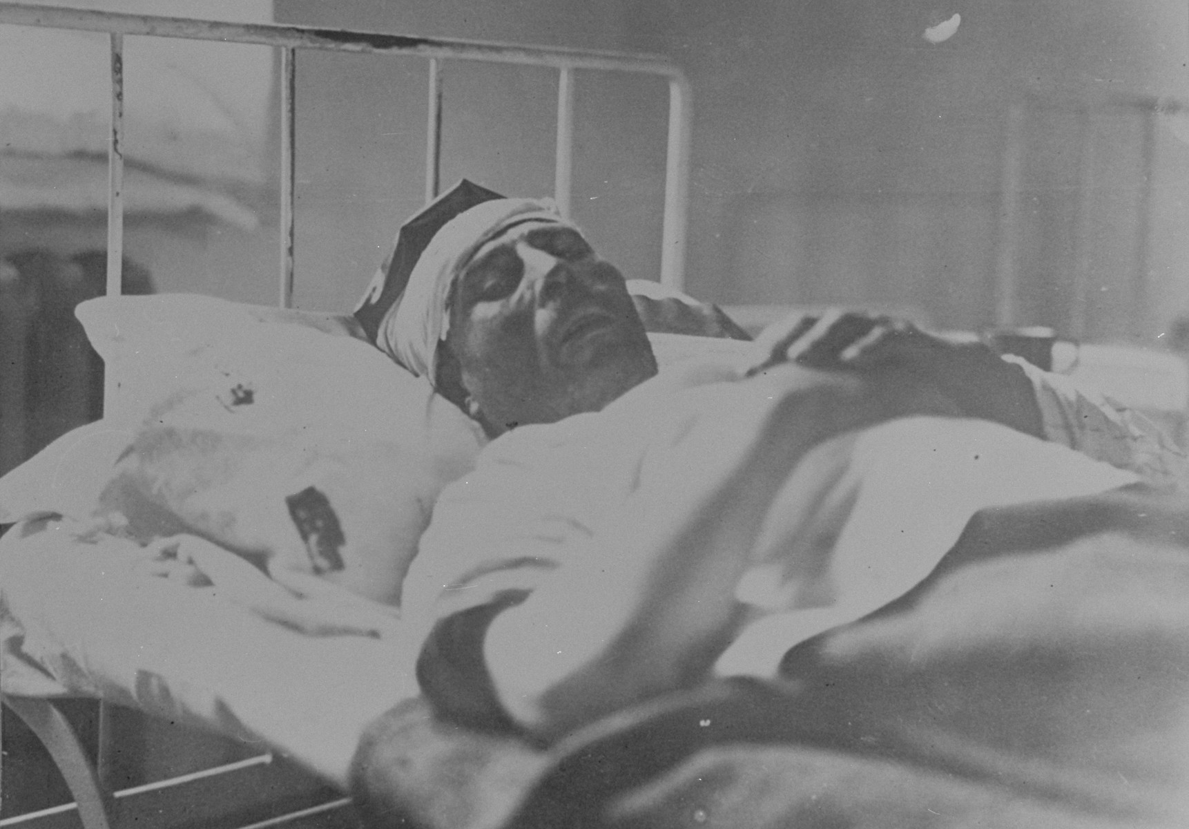 A Jew injured during the pogrom convaleces in a hospital.