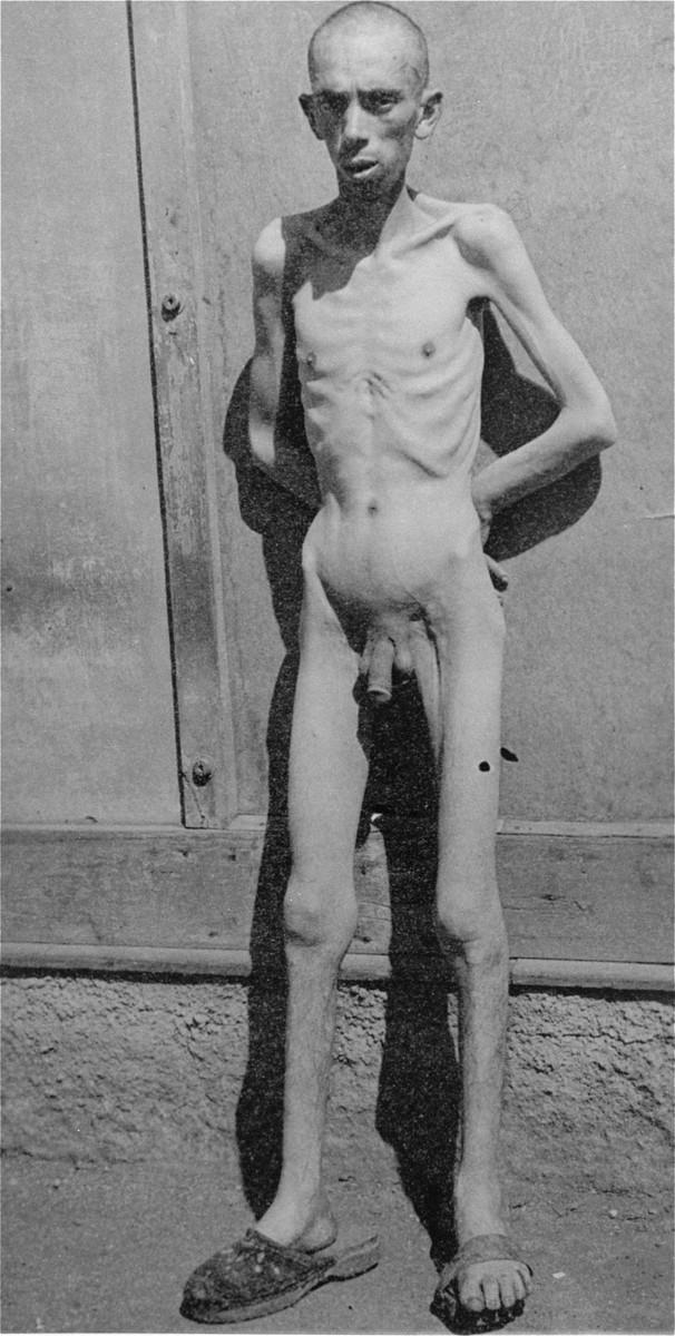A Jewish survivor in Dachau.