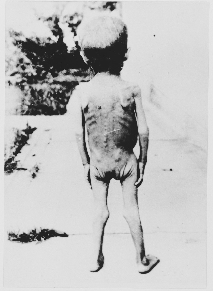 One naked, emaciated child poses outside with his back to the camera at the Jastrebarsko concentration camp.