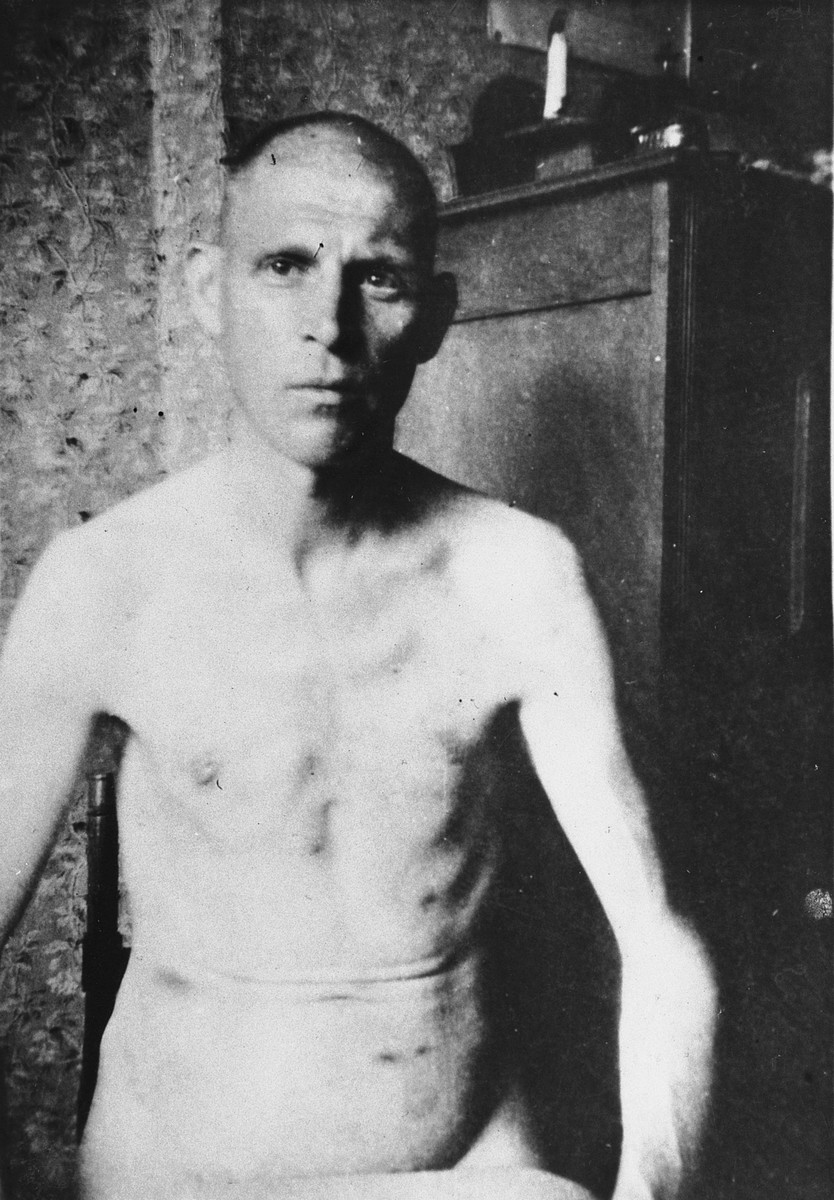Close-up photograph of Emile Renard after his liberation from the Breendonck internment camp.