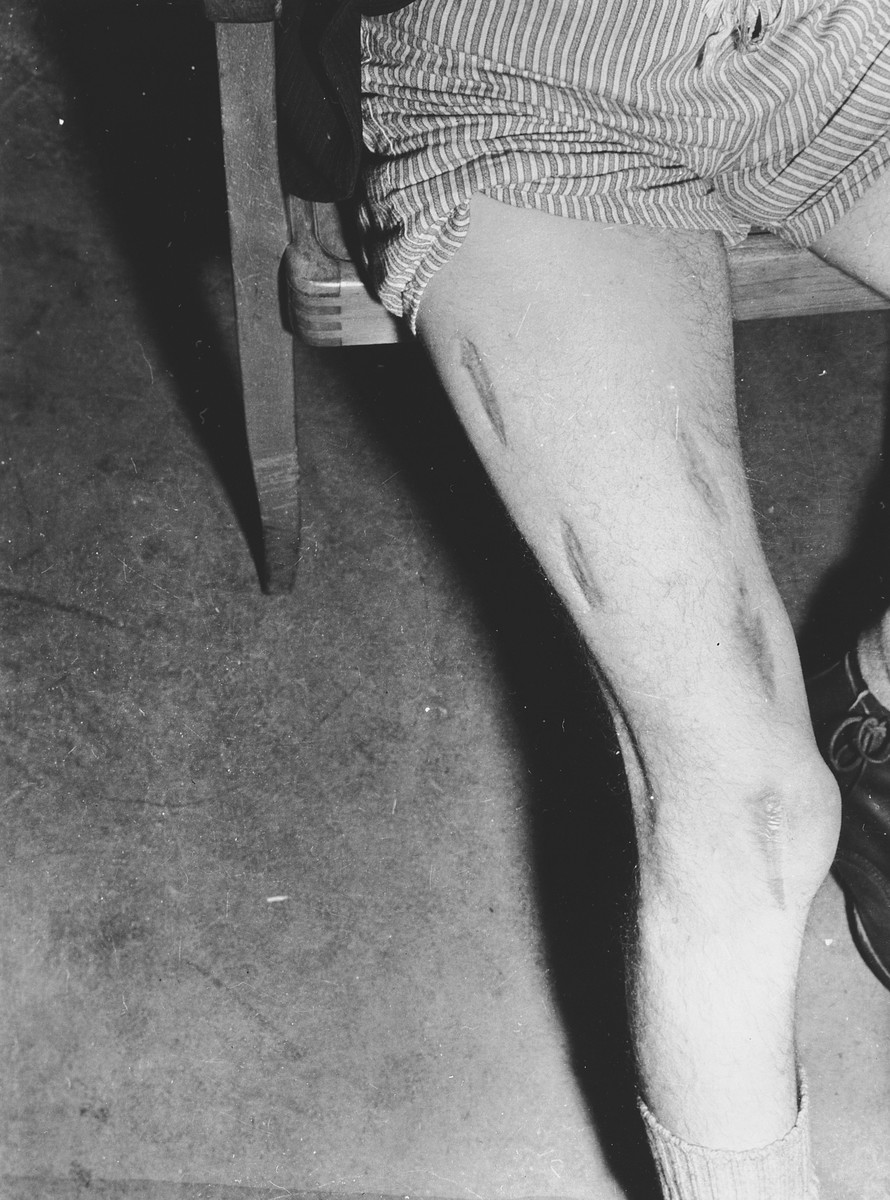 Close-up view of the badly scarred leg of a survivor who was probably the victim of medical experimentation in the Dachau concentration camp.