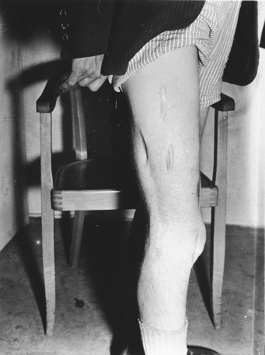 Close-up view of the badly scarred leg of a survivor who was probably the victim of medical experimentation in the Dachau concentration camp .