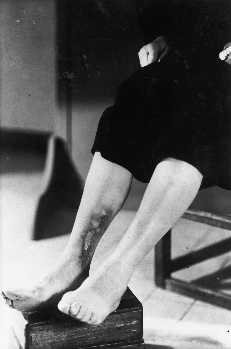 A survivor shows the scars on her legs as a result of her torture in the Breendonck internment camp.