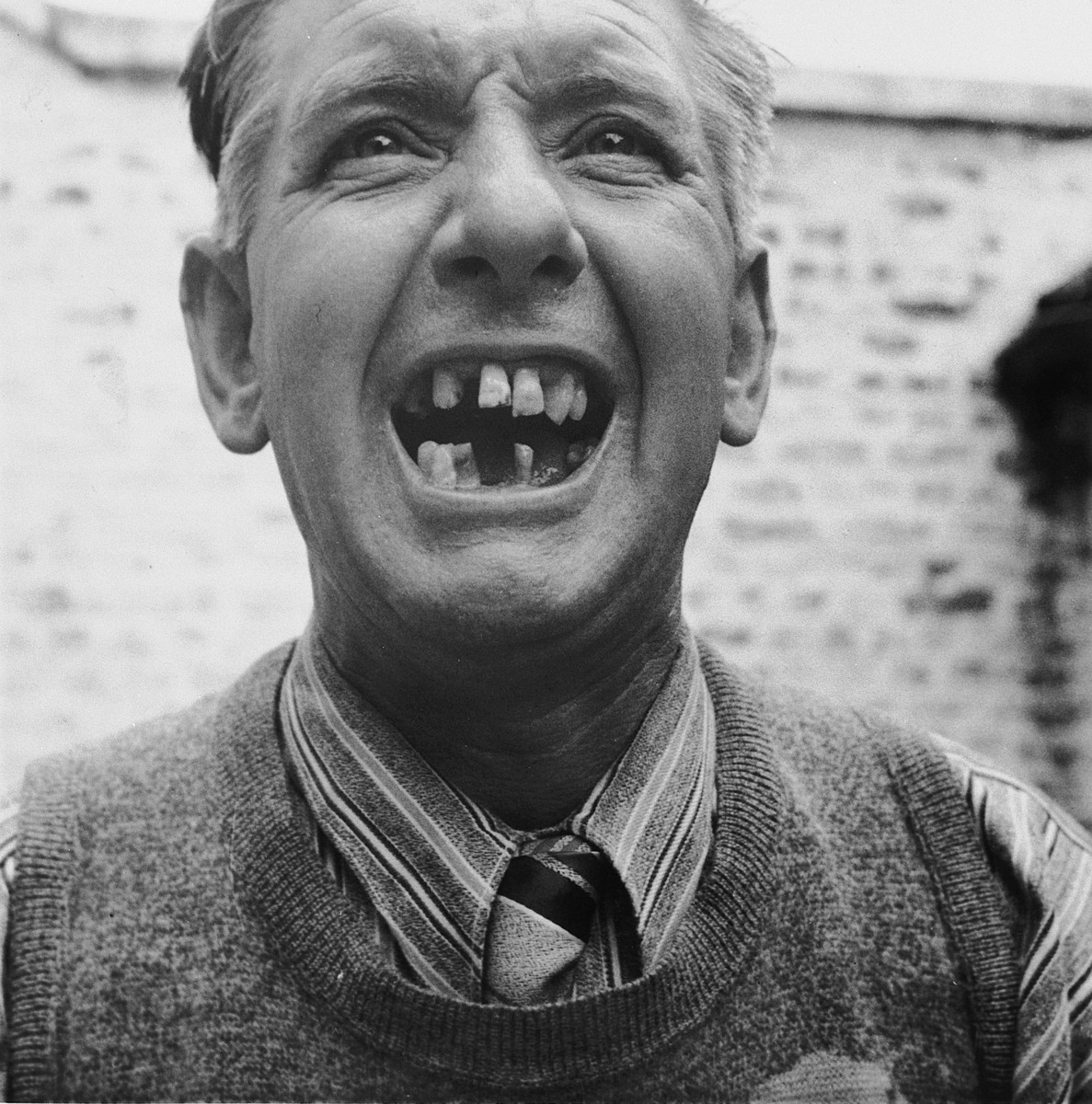 Mr. Emile Scieur displays his missing teeth as a result of torture received during his seventeen month imprisonment in the Breendonck internment camp.