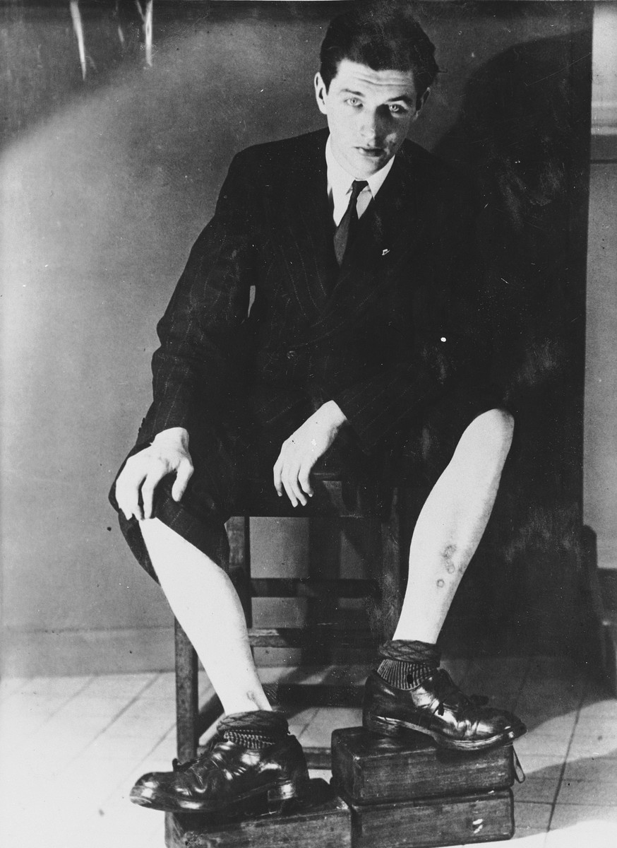 Paul de Rudder shows the scars on his legs as a result of his torture in the Breendonck internment camp.