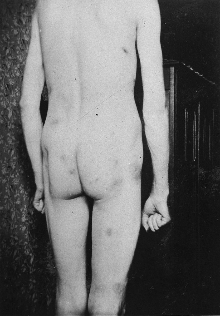 A survivor shows the scars on his body as a result of torture in the Breendonck internment camp.