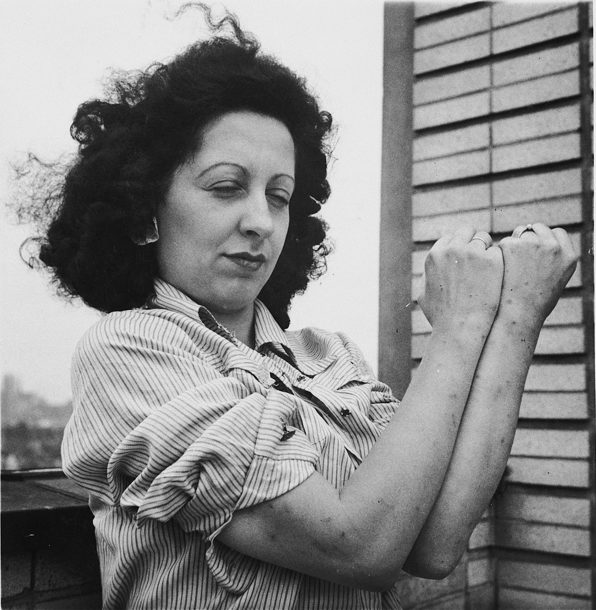 Mme. Margueritte Paquet shows the scarring on her arms as a result of her torture in the Breendonck internment camp.