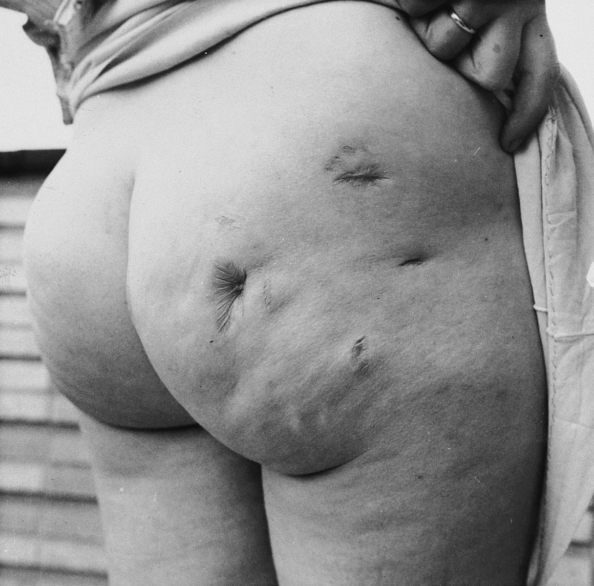 Madame Pacquet displays scars that she received as the result of torture in the Breendonck internment camp.