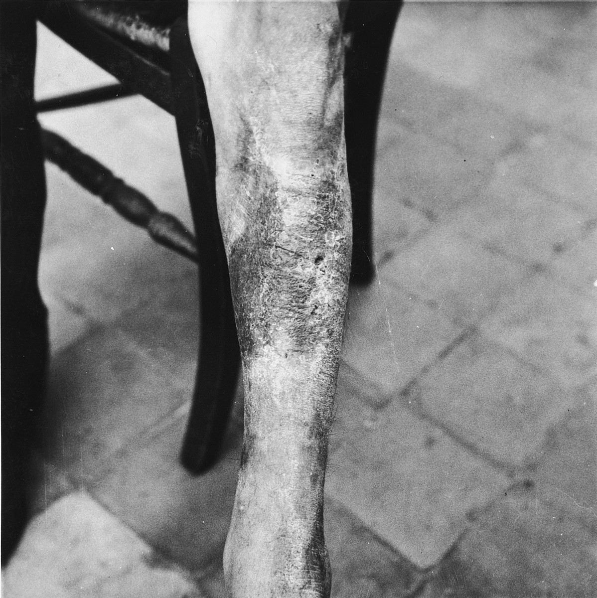 Emile Scieur shows the scarring on his leg that resulted from being beaten with a rubber truncheon in the Breendonck internment camp.