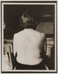 A female survivor from Vienna bares her back to the camera, showing where the Germans had burned a Star of David into her skin .